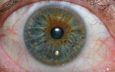 IrisCam Digital SLR System Iris Photo - Trimmed